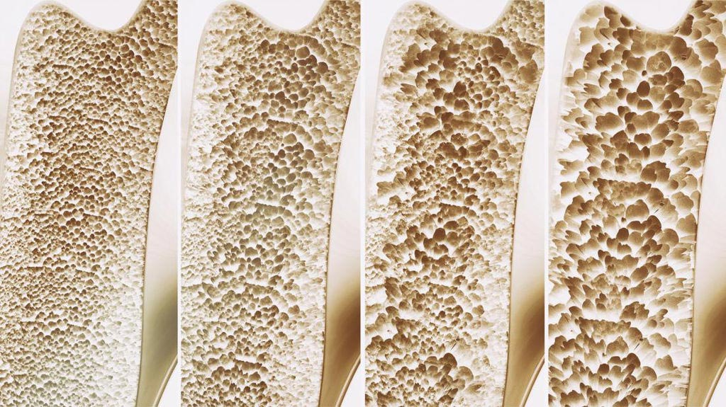 Image: Osteoporotic fractures are the leading cause of hospitalizations in the U.S. (Photo courtesy of Dreamstime).