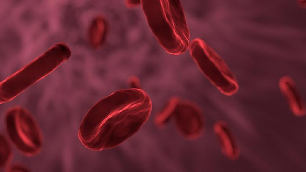 Image: Statistics from a new study show bloodstream ICU infections in the UK have dropped drastically (Photo courtesy of 123rf.com).
