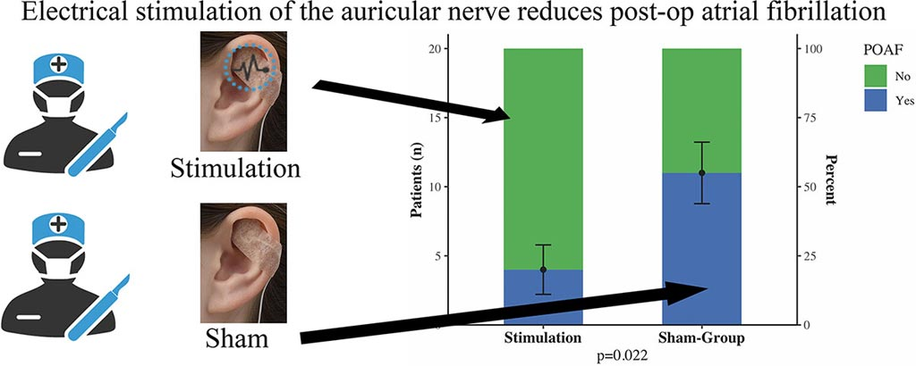 Image: Graphical abstract of the study (Photo courtesy of Martin Andreas / MedUniWien).