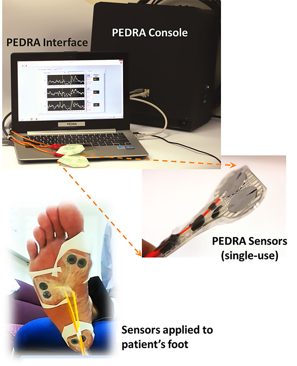 Image: The Pedra real-time tissue perfusion monitor (Photo courtesy of Pedra Technology)
