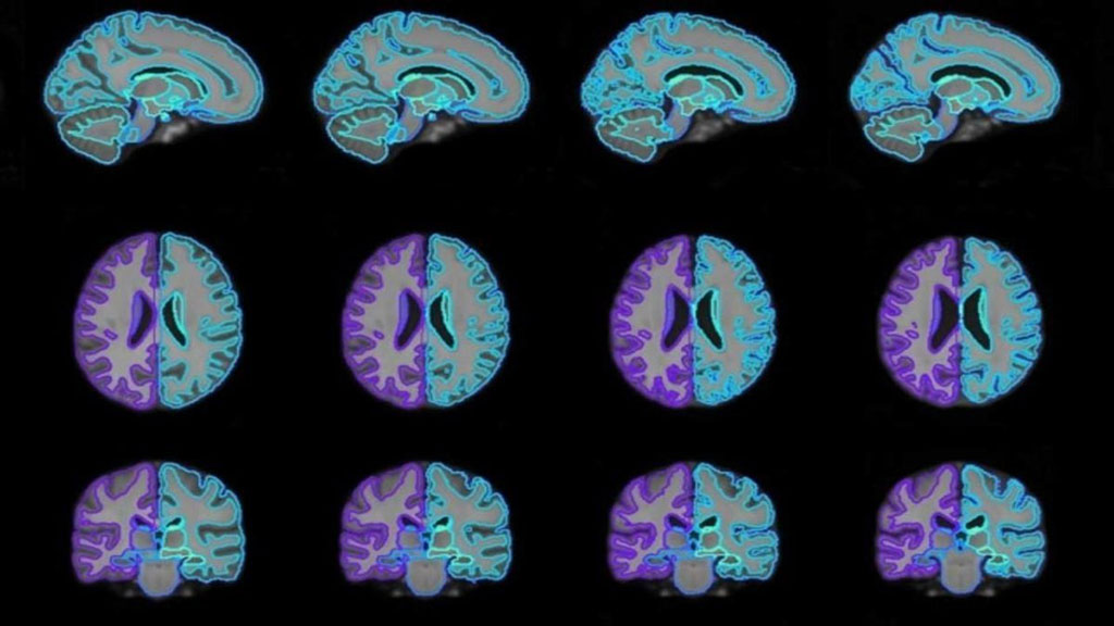 Image: On-demand brain scan templates of various ages generated using the joint CNN platform (Photo courtesy of MIT)
