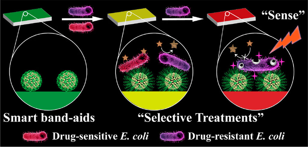 Image: A color-changing bandage treats infections (Photo courtesy of CAS)