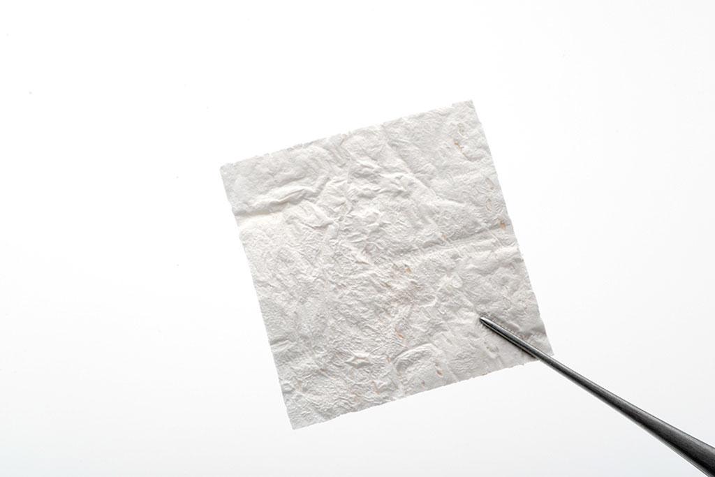 Image: A sheet of the StimLabs Corplex allograft (Photo courtesy of Stimlabs)