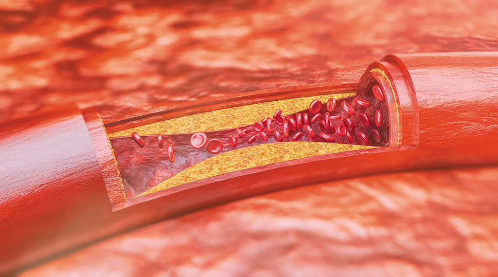 Image: A new therapy can stimulate macrophages to consume plaque debris (Photo courtesy of Getty Images)