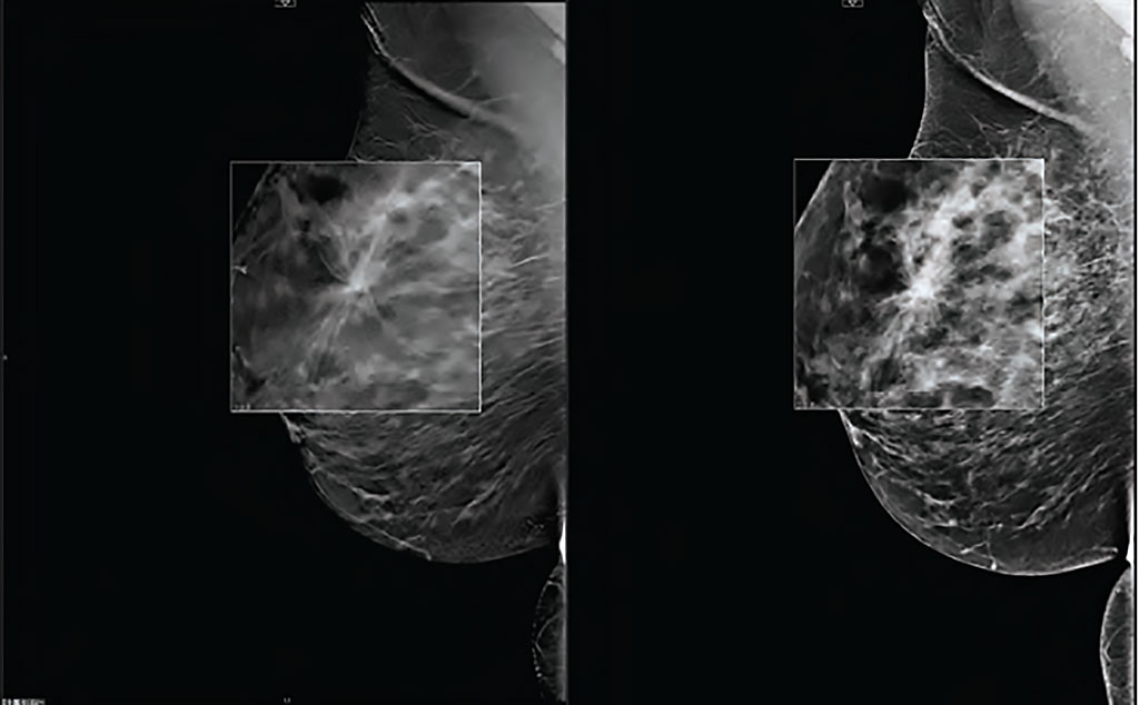 Image: DBT can increase breast cancer detection rates (Photo courtesy of Carestream)