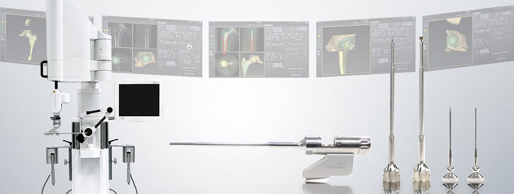 Image: The TSolution One Surgical System advances joint replacement procedures (photo courtesy of THINK Surgical)