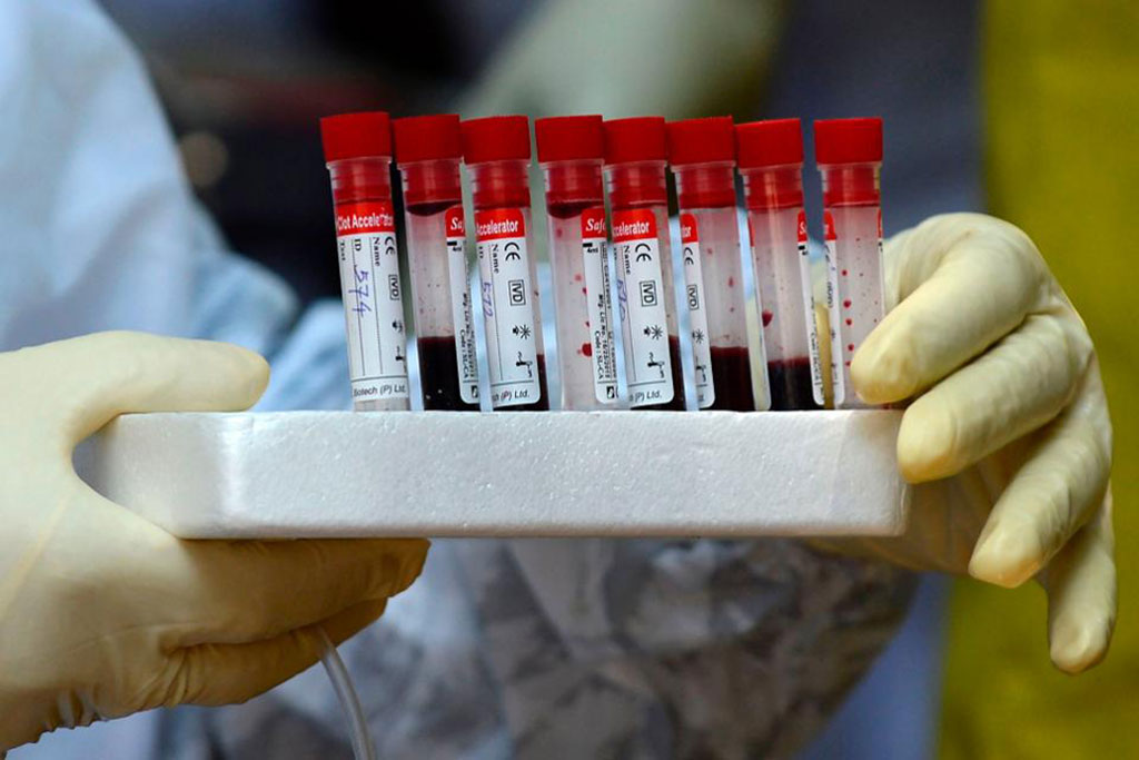 Image: Sophisticated blood clotting tests can reveal renal failure risk in COVID-19 patients (Photo courtesy of Getty Images)