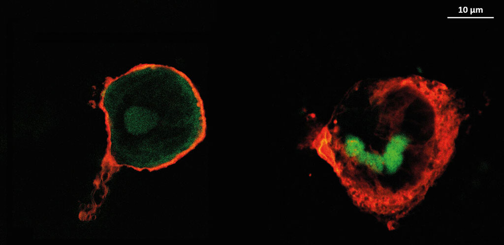 Image: Macrophages on implants coated with heparin (L) and HA (R) (Photo courtesy of Hala Al Khoury / MLU)