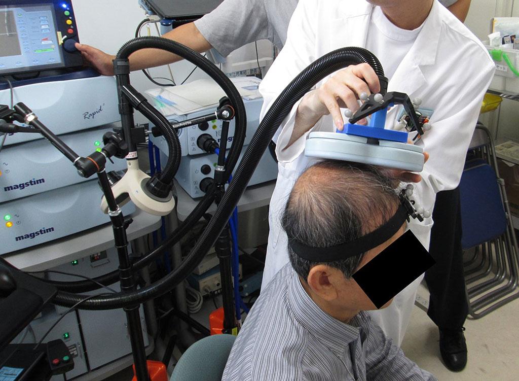Image: Stimulating the brain with rapid magnetic pulses helps determine language center locations (Photo courtesy of Kazuya Motomura/ Nagoya University)