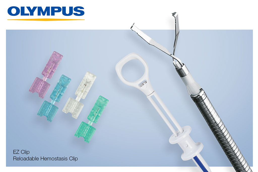 Image: The EZ Clip endotherapy device and clips (Photo courtesy of Olympus)