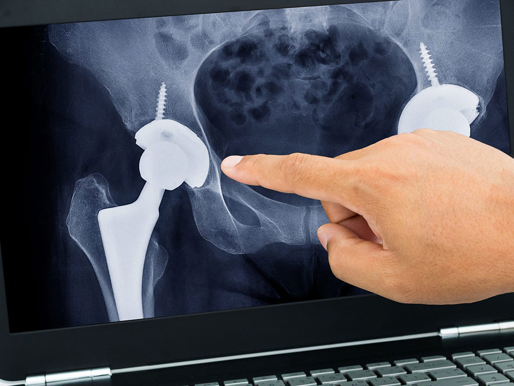 Image: Which THR implant is used is more important than technique or surgeon (Photo courtesy of iStockPhoto)