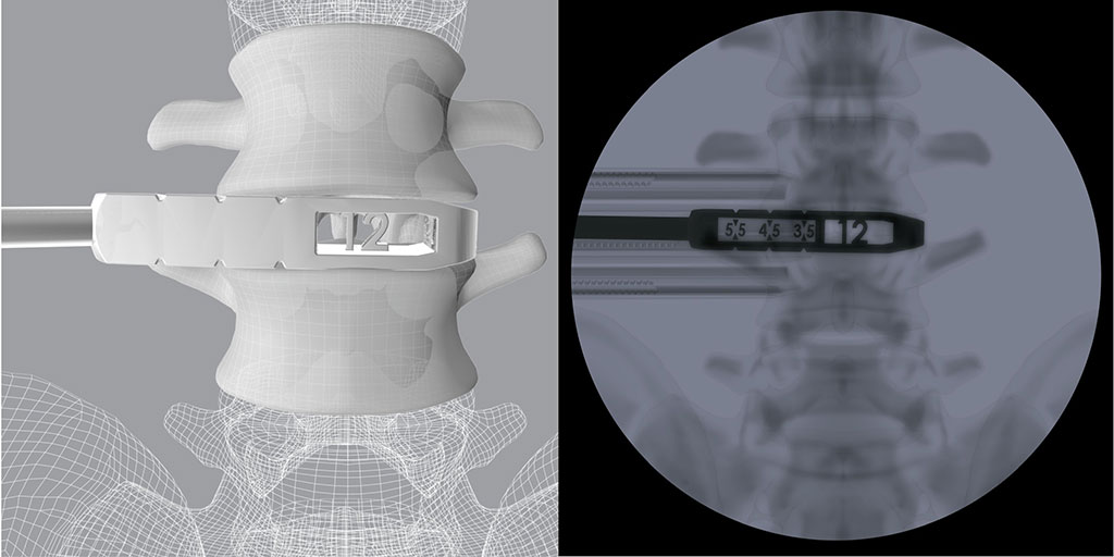 Image: 3D OLIF Trials feature height and length measurements visible only under fluoroscopy (Photo courtesy of CoreLink)