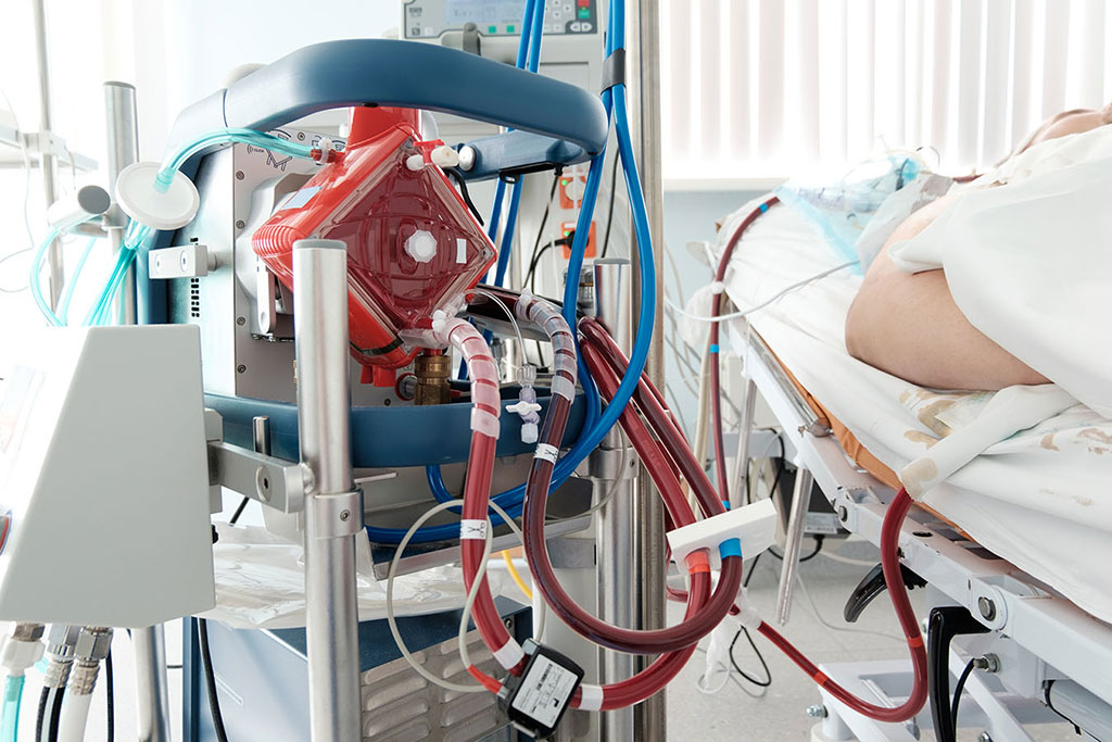 Image:  ECMO can reduce mortality in critical COVID-19 patients (Photo courtesy of Getty Images)
