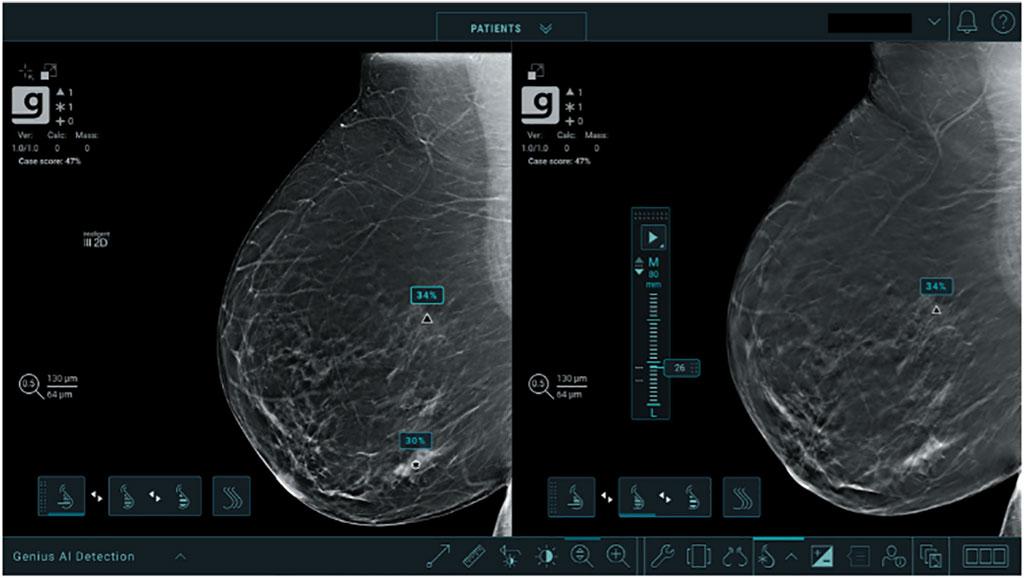 Image: The Genius AI Detection software (Photo courtesy of Hologic, Inc.)