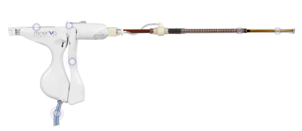Image: The Minerva Endometrial Ablation System (Photo courtesy of Minerva Surgical)