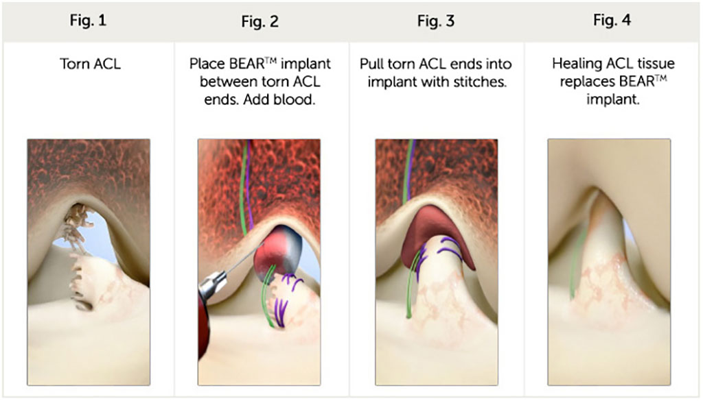 Image: An ECM implant repairs a torn ACL (Photo courtesy of Miach Orthopaedics)