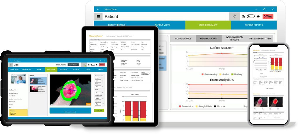 Image: The WoundZoom software platform and dashboards (Photo courtesy of Perceptive Solutions)