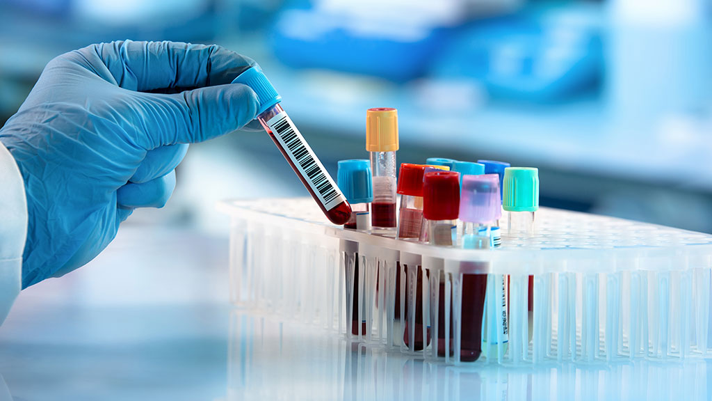 Image: Most preoperative tests done today are considered unnecessary (Photo courtesy of iStock)