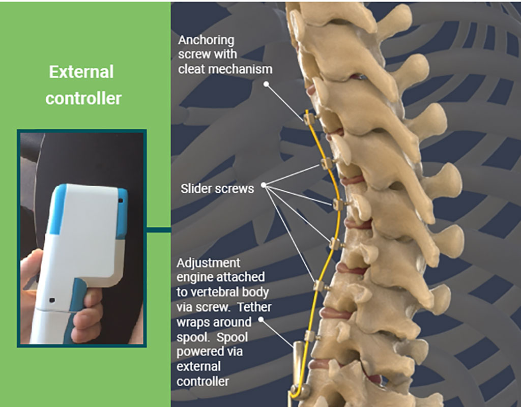 Image: A dynamic VBT system treats pediatric scoliosis (Photo courtesy of Auctus Surgical)