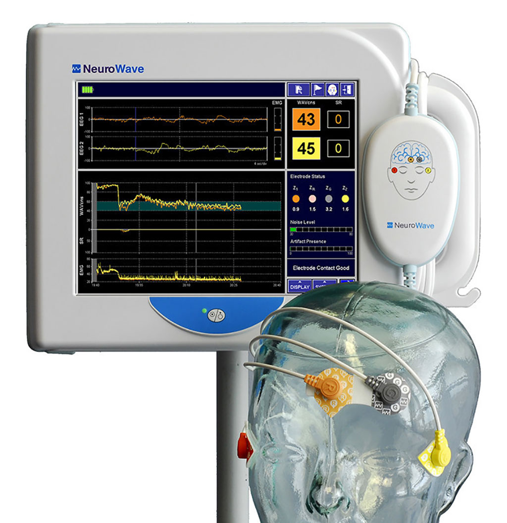 Image: The NeuroSense NS-901 monitor (Photo courtesy of NeuroWave Systems)