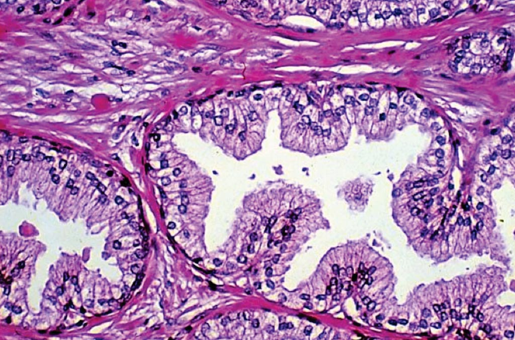 Image: A photomicrograph of a histological section of Benign Prostatic Hyperplasia, a non-cancerous condition of the prostate gland. The hyperplastic glands have papillary-like infoldings, with a myoepithelial cell layer (small nuclei near basement membrane) (Photo courtesy of Getty Images).