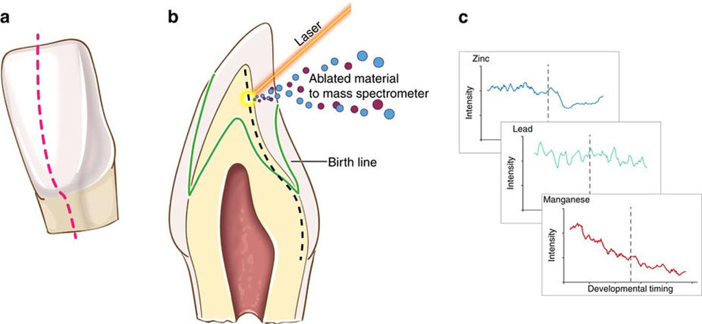 Image: An overview of tooth-matrix biomarkers applied in this study (Photo courtesy of Arora M et al / Nature Communications).