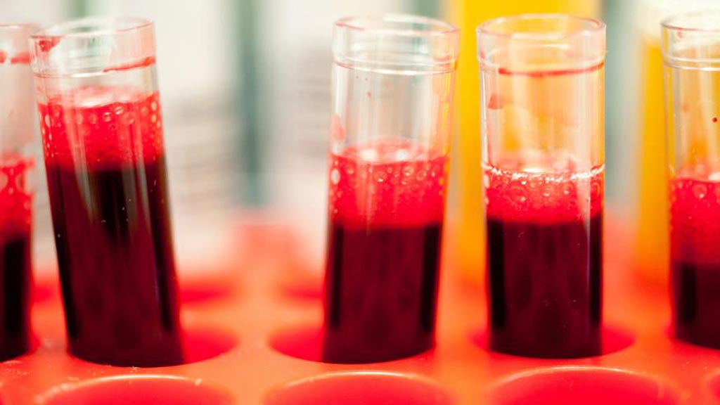 Image: Blood samples being prepared for the Three-In-One Blood Test that predicts a patient\'s response to PARP inhibitors (Photo courtesy of The Institute of Cancer Research).