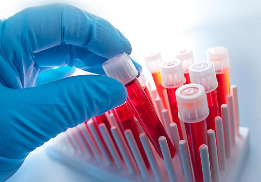 Image: The global hematology analyzer market is expected to surpass USD 2 billion by 2024 (Photo courtesy of Shutterstock).