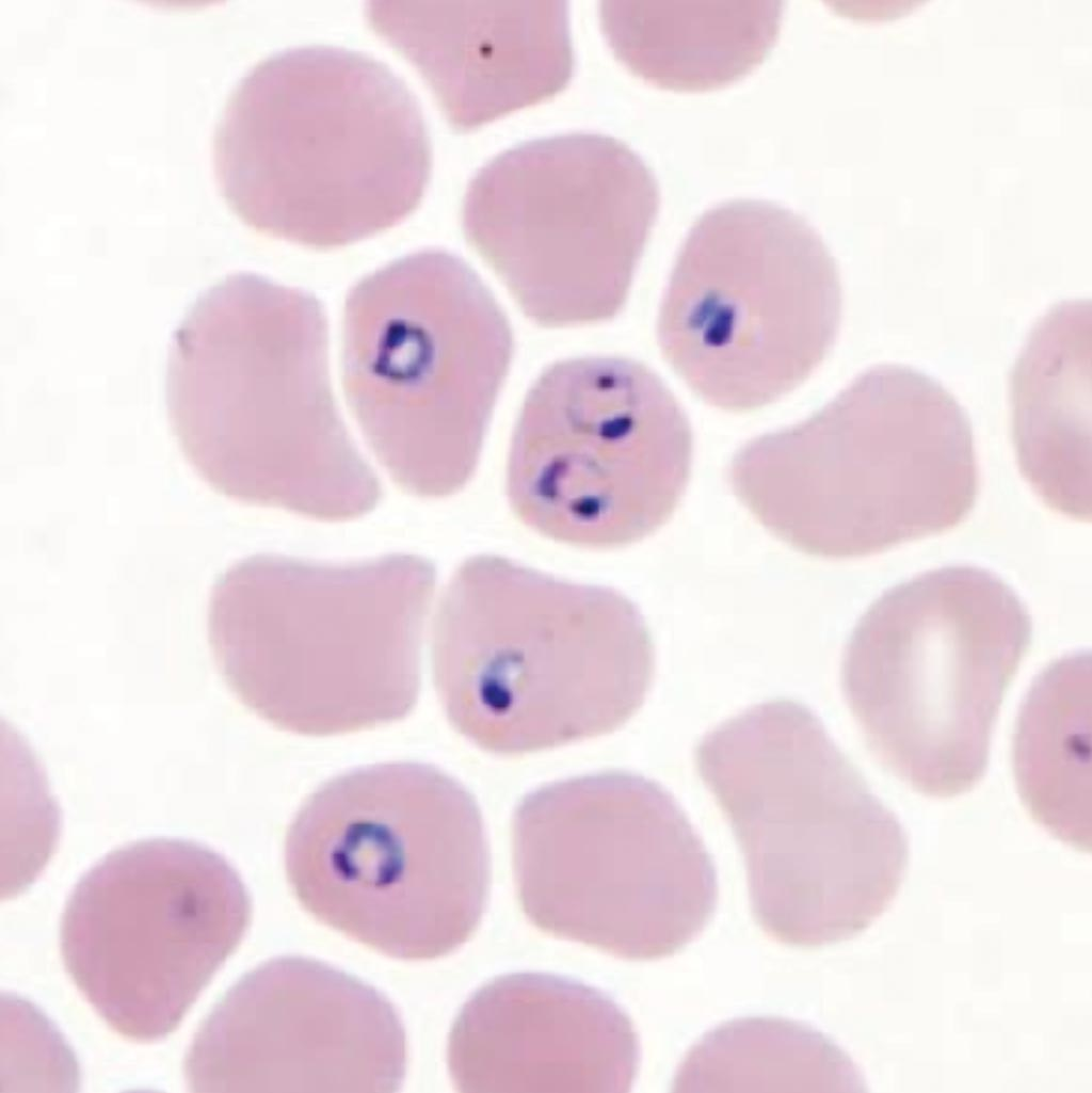 Image: Rings of Plasmodium falciparum in a stained thin blood smear (Photo courtesy of the CDC).
