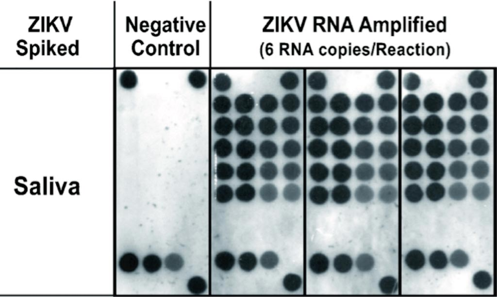 Image: Detection in saliva of Zika virus using reverse-transcription LAMP coupled with reverse dot blot analysis (Photo courtesy of New York University College of Dentistry).