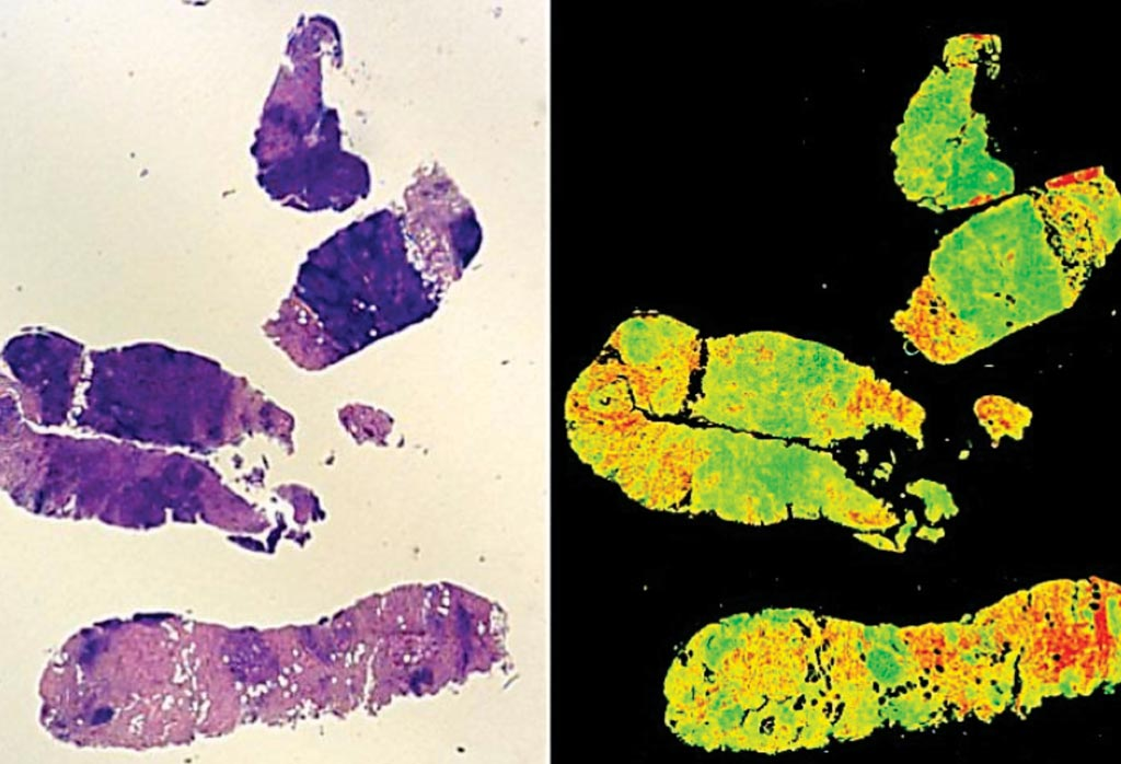 Image: New cutting edge technology can be used to grade cancer tumors, eradicating human subjectivity. A traditional stained H+E biopsy (L) and a Digistain view (R) (Photo courtesy of Imperial College London).