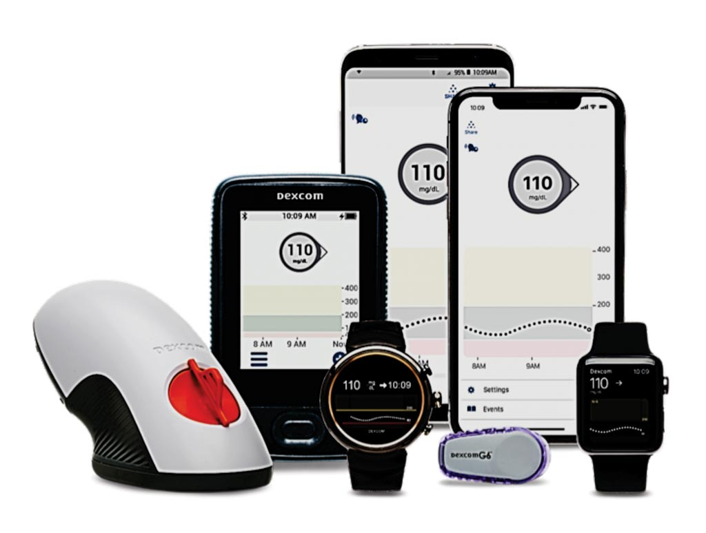 Image: The Dexcom 6 is an integrated continuous glucose monitoring (iCGM) system for determining blood glucose (Photo courtesy of DEXCOM).