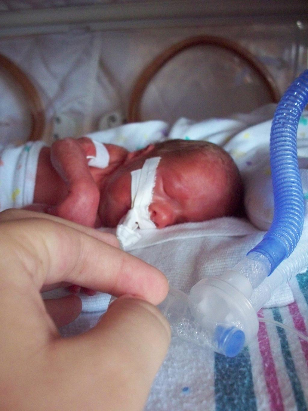 Image: An intubated baby that was born prematurely 26 weeks, six days gestation, weighing 990 grams. Photograph was taken approximately 24 hours after birth (Photo courtesy of Wikimedia Commons).