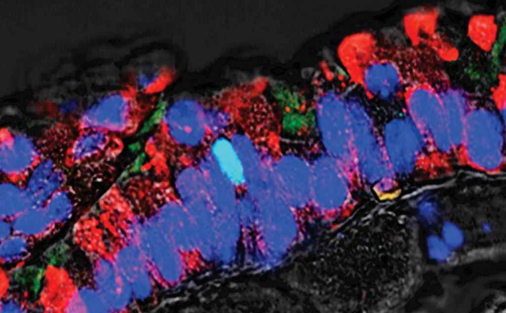 Image: A bronchial tube, cells stained red and blue are part of the bronchial epithelium, or lining. This demonstrates the existence among these cells of a rare cell type (stained blue-green), believed to be a tuft cell. The scientists have discovered a new type of lung cancer with origins in these cells, which overexpress a gene-regulating protein called POU2F3, a potential target for therapy (Photo courtesy of Cold Spring Harbor Laboratory).