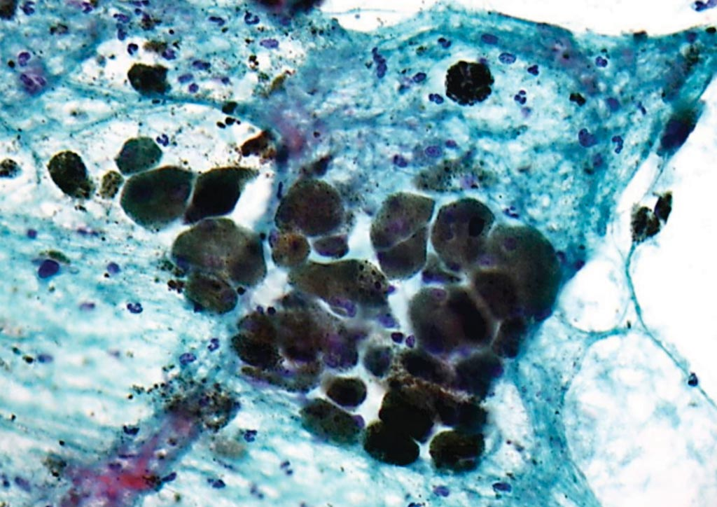 Image: A photomicrograph of pigmented malignant melanoma in a Papanicolaou stained cytology specimen, (Photo courtesy of Nephron).