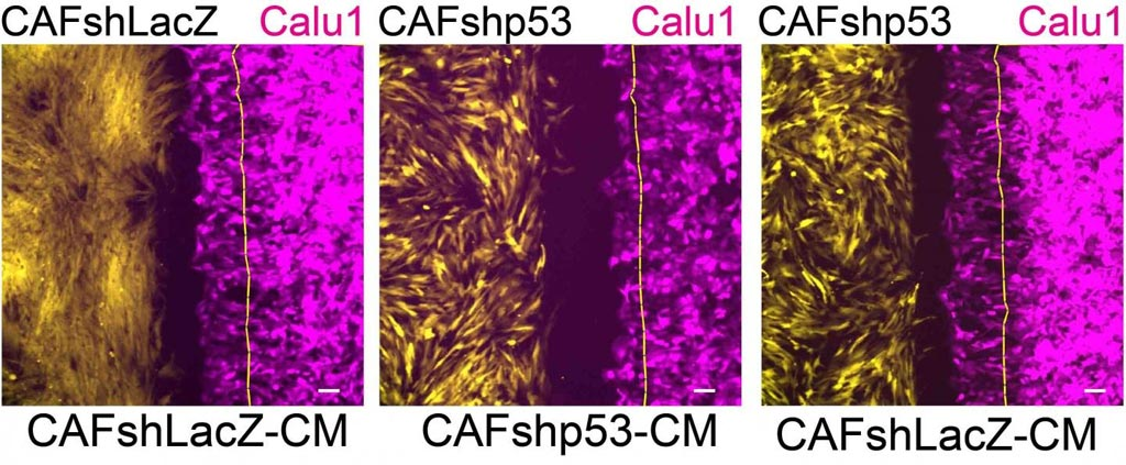 Image: The effects of p53 in cancer-associated fibroblasts on cancer cell migration: Cancer cells (magenta) migrate in the direction of cancer-associated fibroblasts (yellow) that express a non-mutated p53 gene (left); this migration slows down (center) when the p53 in the fibroblasts is silenced; when substances released by the cancer-associated fibroblasts are added to the laboratory dish, the migration is restored (right) (Photo courtesy of the Weizmann Institute of Science).