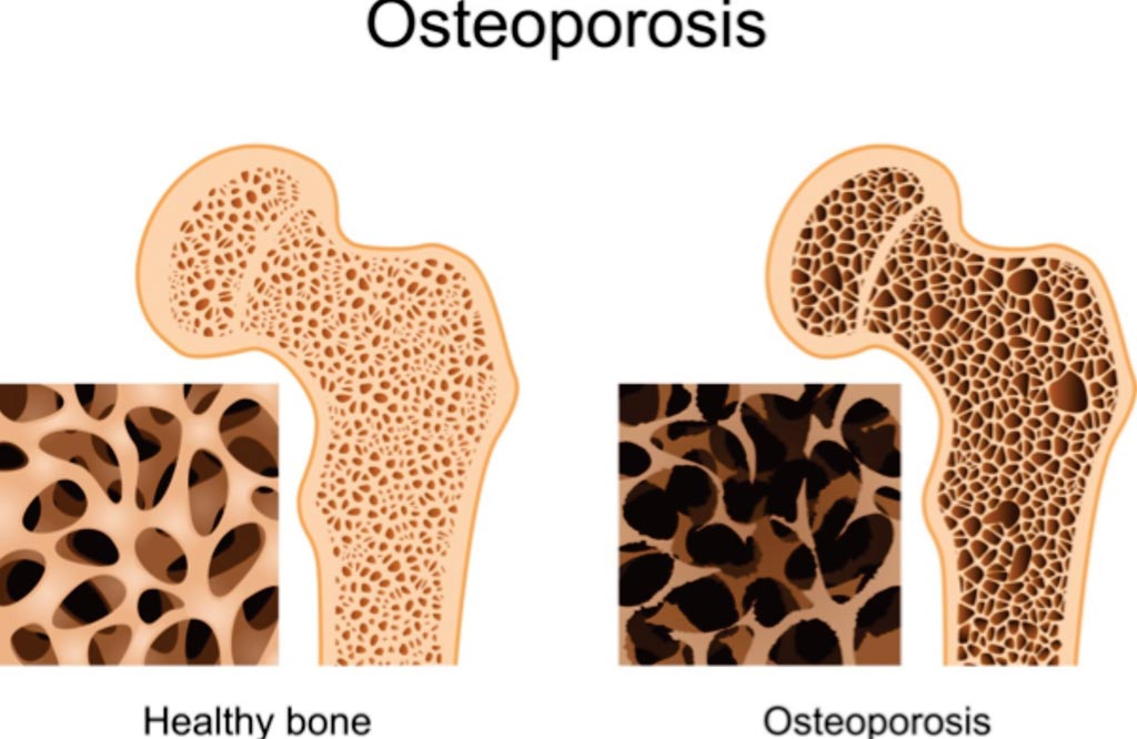 Image: A comparison of healthy bone and osteoporosis (Photo courtesy of PharmacyPedia).