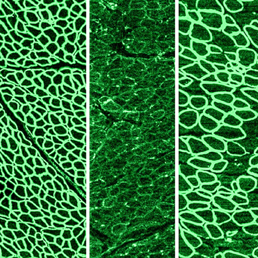 Image: In a recent study, CRISPR gene editing was shown to halt the progression of Duchenne muscular dystrophy (DMD) in dogs. The photomicrographs show dystrophin (in green) in a healthy diaphragm muscle (left), absence of dystrophin in a dog with DMD (center), and restoration of dystrophin in dogs treated with CRISPR (right) (Photo courtesy of the University of Texas Southwestern Medical Center).