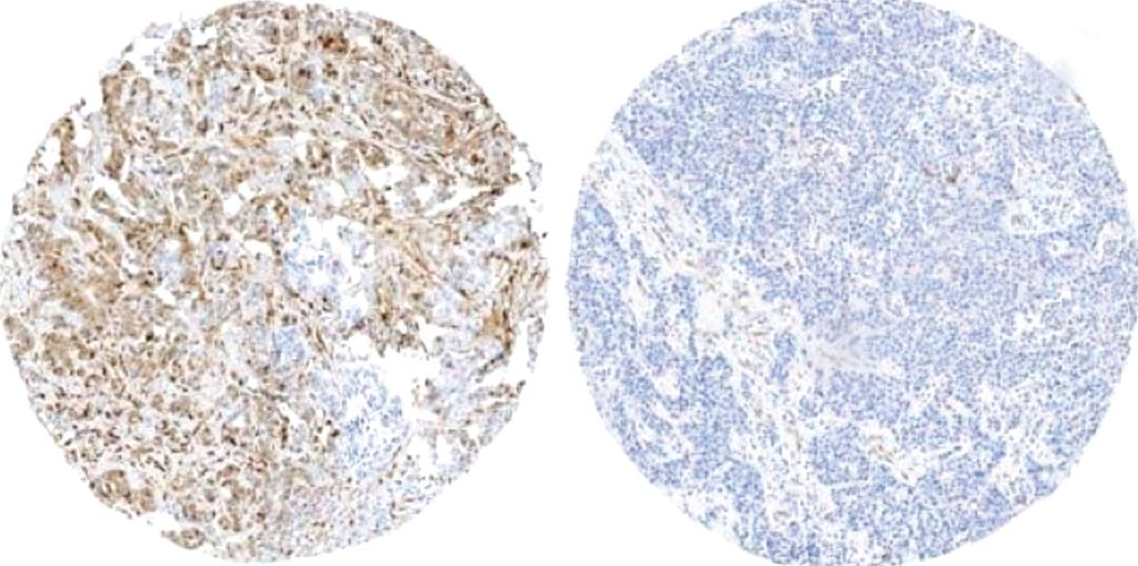 Image: Breast tissue from a relapsed patient with active phosphorylation markers (left; brown color), compared to breast tissue from a patient without relapse and who does not have these active markers (right) (Photo courtesy of Centro Nacional de Investigaciones Oncológicas).