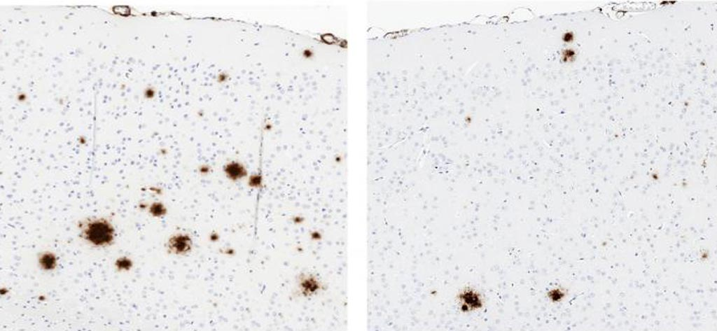 Image: Compared to a control (left), a soluble version of TLR5 (right) reduced the formation of amyloid plaques (brown) in the brains of mice that produced large amounts of human beta-amyloid (Photo courtesy of Chakrabarty et al., 2018).