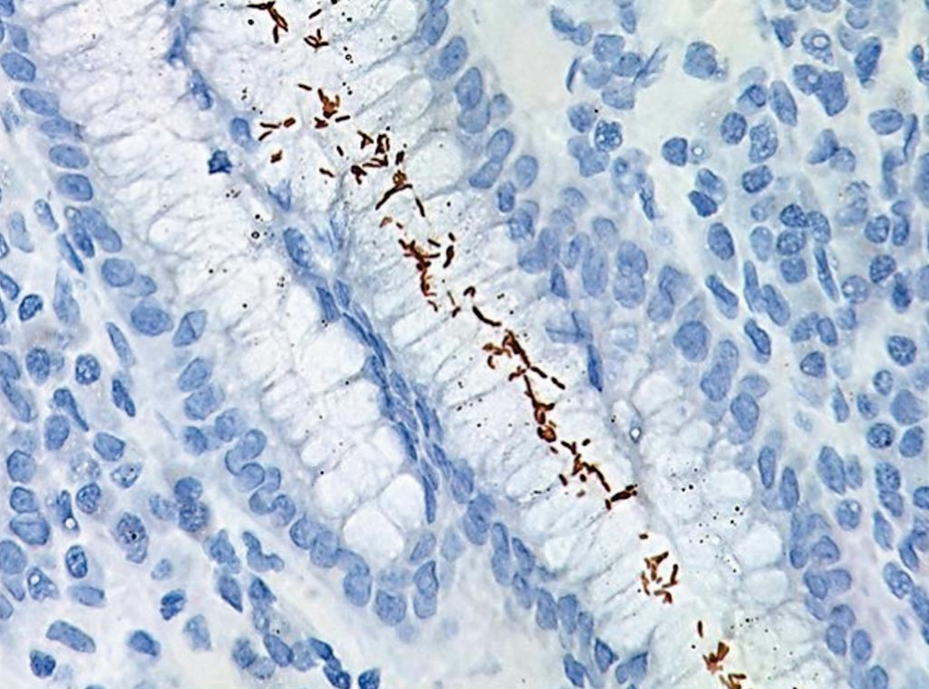 Image: Immunostaining of Helicobacter pylori infection in the small intestine. The small spiral-curved shaped bacterium can be seen clearly using a ×100 oil objective under the microscope (Photo courtesy of BioCare Medical).