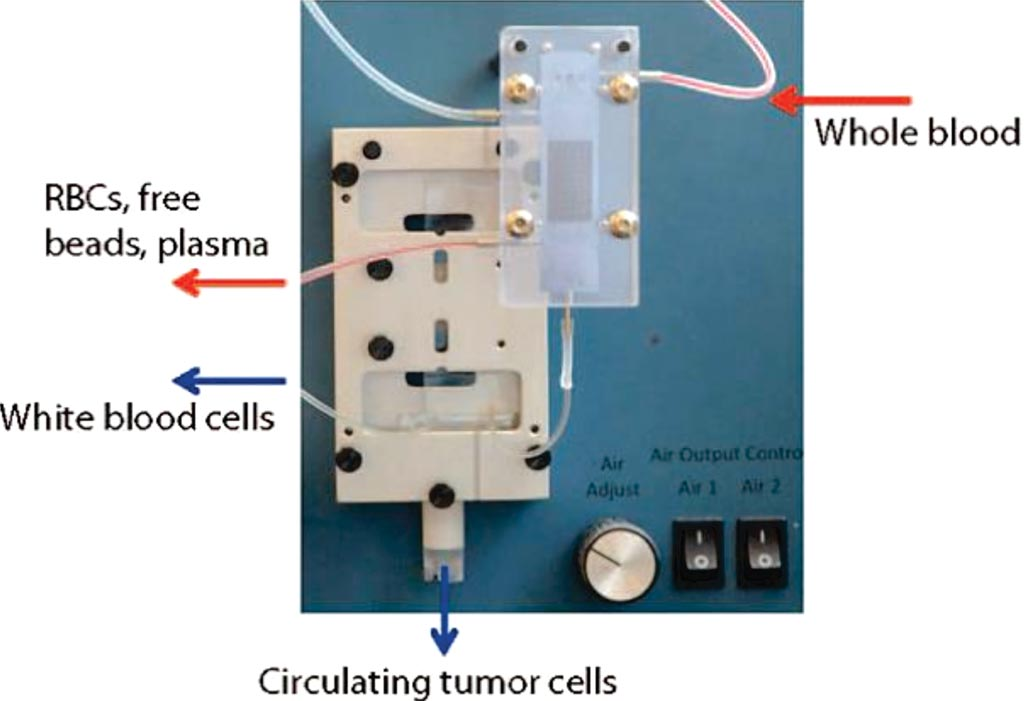 Image: The iChip: The blood sample is passed into the CTC-iChip microfluidic system, which first removes red cells, plasma and free magnetic beads and then sorts out tagged white blood cells, leaving a purified solution of circulating tumor cells (Photo courtesy of Dr. Emre Ӧzkumur, PhD).