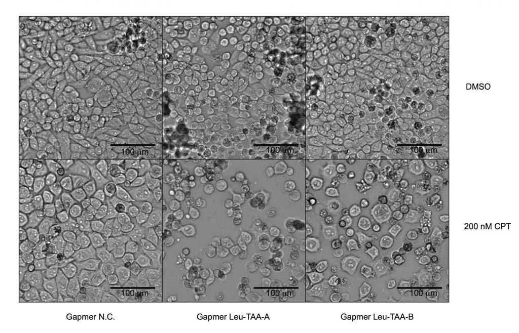 Image: Pancreatic cancer cells deficient in the expression of the human gene known as Schlafen 11 and resistant to chemotherapy (left panels) were re-sensitized to chemotherapeutic treatment (middle and right panels) by inhibiting the expression of the transfer RNA known as tRNA-Leu-TAA through specially designed antisense oligonucleotides (Photo courtesy of Manqing Li, Michael David Laboratory, University of California, San Diego).