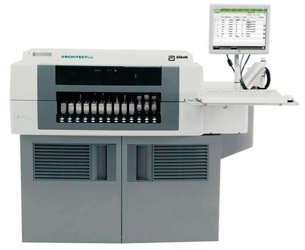 Image: The automatic immunoassay analyzer / chemiluminescence ARCHITECT i1000SR (Photo courtesy of Abbott Diagnostics).
