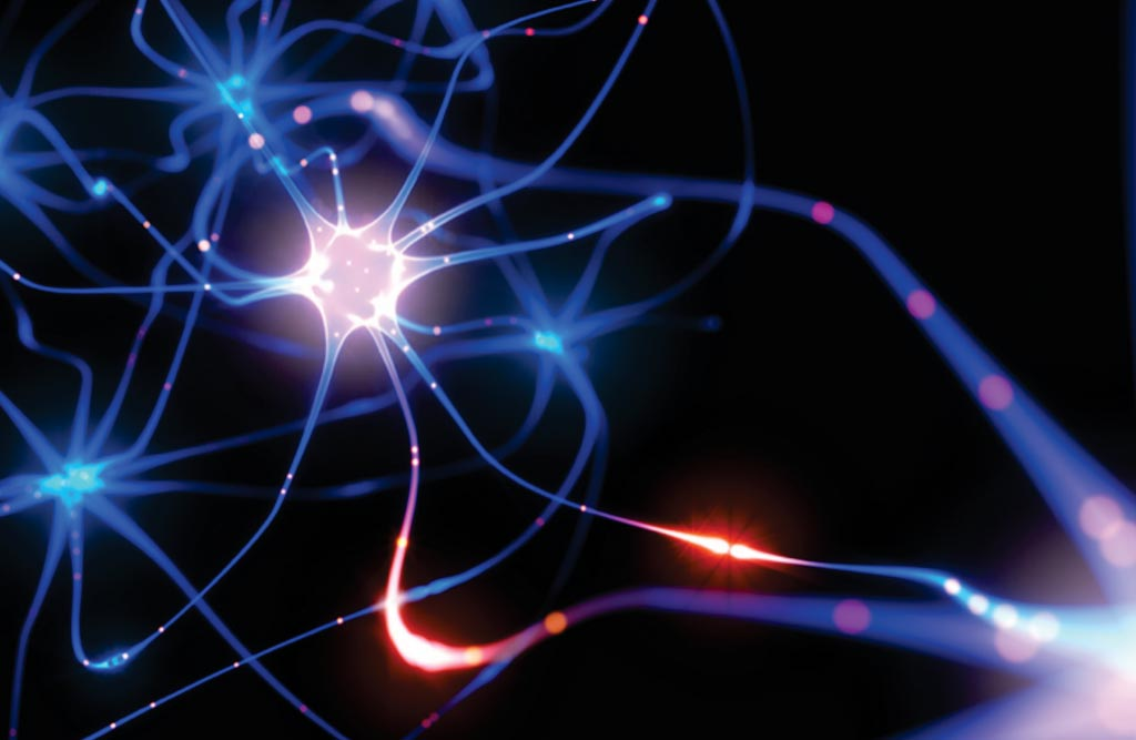 Image: Gene recombination in neurons that produces thousands of new gene variants within Alzheimer's disease brains have been identified (Photo courtesy of Sanford Burnham Prebys Medical Discovery Institute).