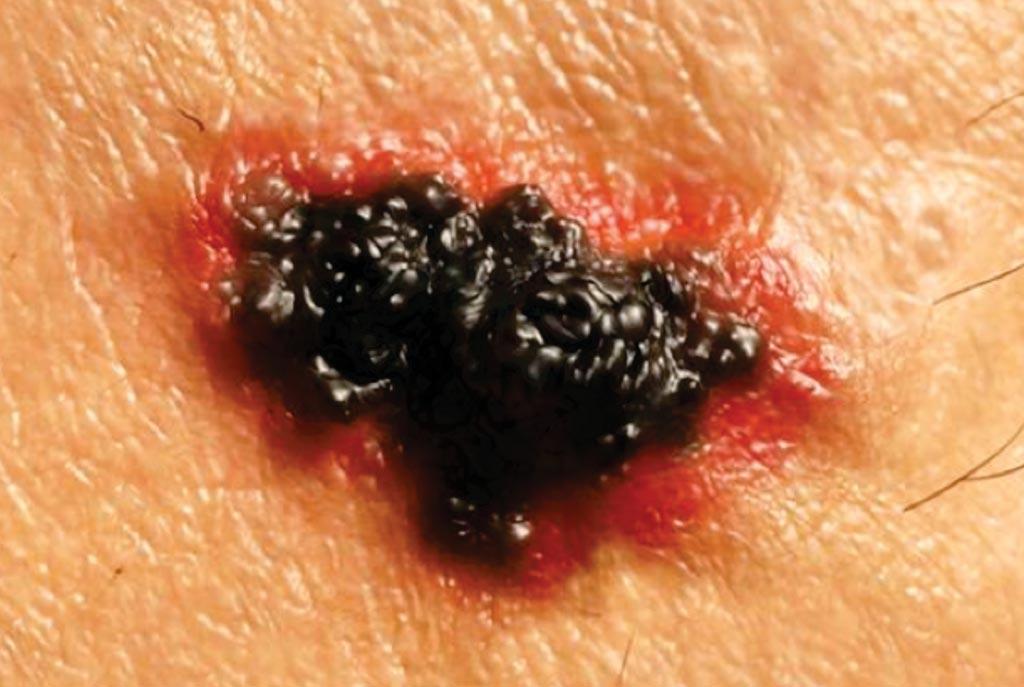 Image: A malignant melanoma of the skin (Photo courtesy of Juan Gaertner).