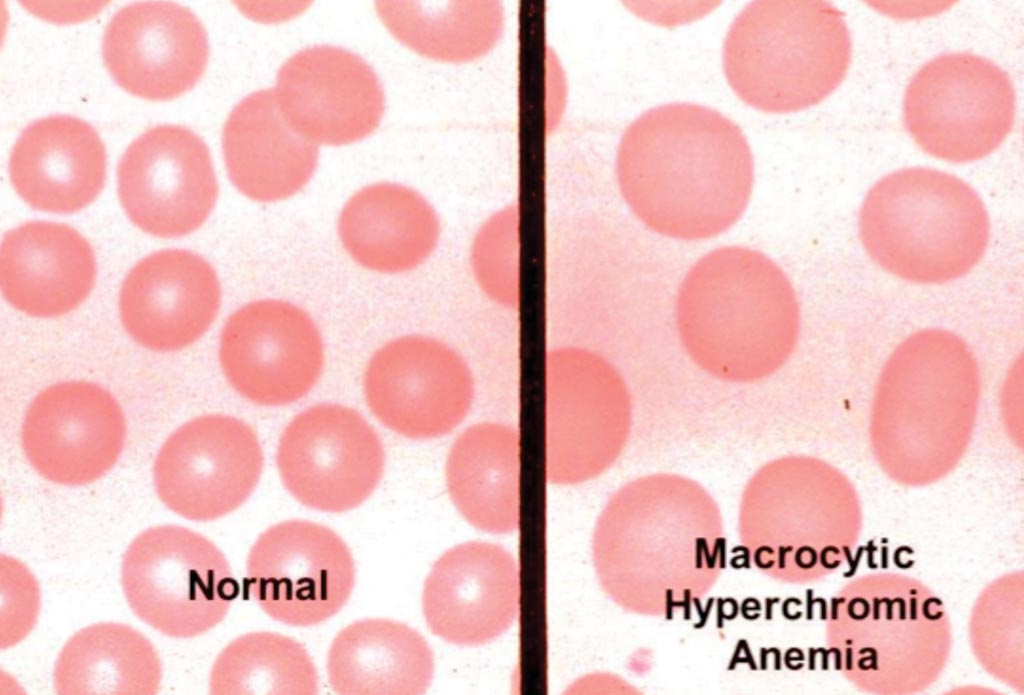 Image: Blood smears from normal and macrocytic anemia patients (Photo courtesy of Myrtle Porter).
