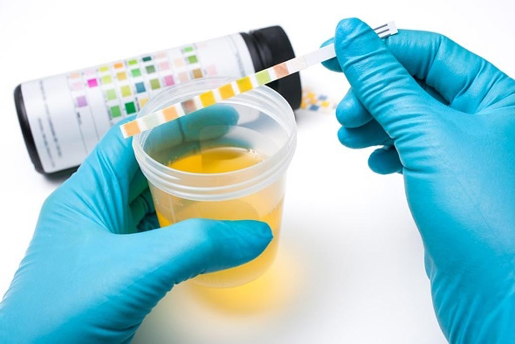 Image: The global urinalysis market is expected to reach a value of USD 1.5 billion by the end of 2024 (Photo courtesy of Shutterstock).