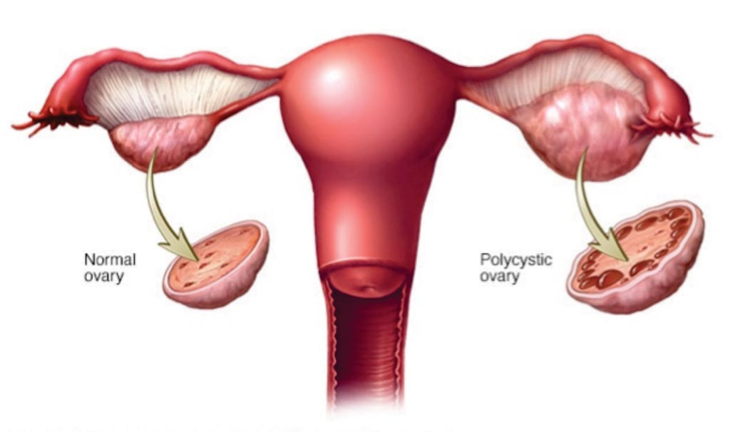 Image: A diagram showing normal and polycystic ovary syndrome, in the latter the ovaries may develop numerous small collections of fluid (follicles) and fail to regularly release eggs (Photo courtesy of Mayo Clinic).