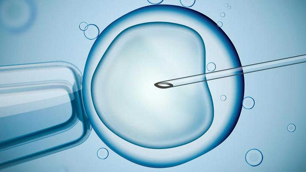 Image: The global IVF market is currently estimated to be worth USD 10-12 billion (Photo courtesy of iStock).